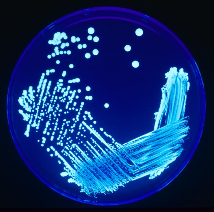 Ligonella growing on an agar plate shown under UV light. Image credit: CDC/James Gathany