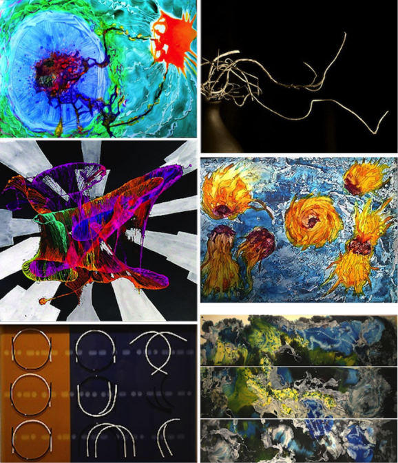 "Figure 5: Images from the cancer-art collaborative project – ""Cancer: Finding Beauty in the Beast"", from top left, clockwise, ""Energy flow"", oil on yupo paper (©2014 Caroline Shaw Ometz), ""Will there be anything left of me"", digital photography (©2015 Sandra Freeman), ""T-cells attacking C-cells"", watercolor on yupo paper (©2015 Elisabeth Schalij), ""Internal Space"", oil on panel (©2014 Puneeta Mittal), ""Symmetry-transition-entropy"", kiln-formed art glass (©2015 Anne Neal), and ""Strange attractor of cancer in its phase space"", acrylic on paper and Adobe illustrator (©2014 Dhruba Deb)"