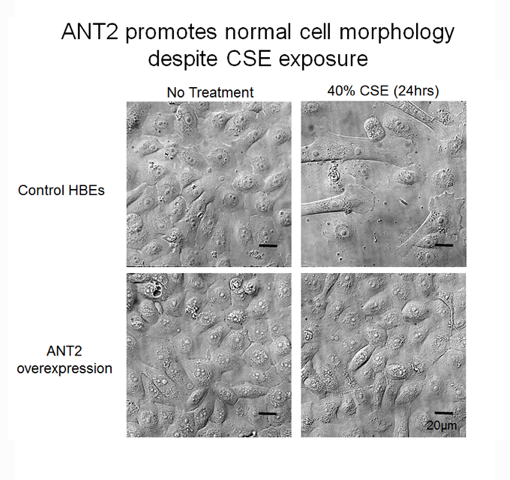 ANT2 maintains normal cell morphology of human bronchial epithelial cells after 40% cigarette smoke extract after 24 hours from Kliment et al. 2015.