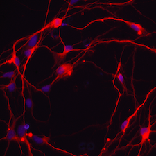 Cultured neurons. Image courtesy of Joseph Gleeson.