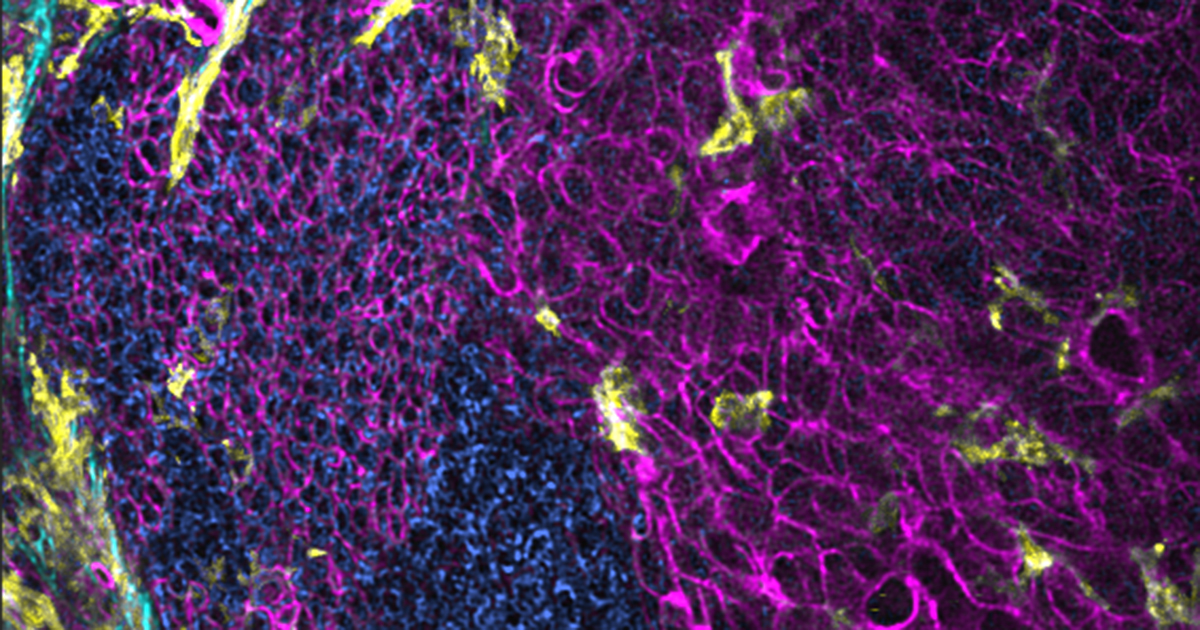 Squamous Cell Carcinoma in the tongue of a transgenic mouse in which myeloid cells and cellular membranes are fluorescently labeled . The image was acquired using multi-photon microscopy. The tumor (blue cells) is surrounded by healthy cells (magenta) and it is enclosed in collagen fibers (cyan). Myeloid cells (neutrophils and macrophages) are in yellow. Credit: Dr. Weiye Wang, CCR-NCI